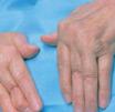风湿性关节炎症状
