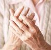 风湿性关节炎危害