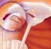 滑膜炎症状