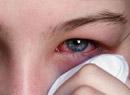 红眼病的症状表现是什么